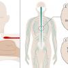 Áttörést jelentő sejtátültetés után újra jár egy bénult férfi