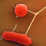 Coli_bakterium2_hasmenes