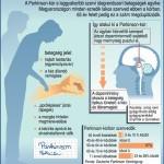 A Parkinson-kór a leggyakoribb szervi idegrendszeri betegségek egyike: Magyarországon minden ezredik lakos szenved ebben a kórban, 65 év felett pedig ez a szám megduplázódik. A betegség jelei: a kéz állandó remegése, hajlott testtartás (egyensúlyzavar), aprólépéses járás (tipegés), a mozgás hirtelen megmerevedése, a kézírás apróvá és olvashatatlanná válik Így alakul ki a Parkinson-kór: Az agyban közvetítő szerepet játszó dopamintermelő sejtekből nagy mennyiség pusztul el. A dopaminhiány okozza a betegség tipikus tüneteit: a kéz- és lábremegést; Kezelés: amíg nem gyógyítható addig gyógyszerekkel enyhítik a tüneteket