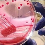 bakterium_tenyeszet_jarvany